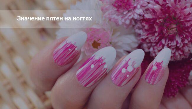 Пятна на ногтях - значение