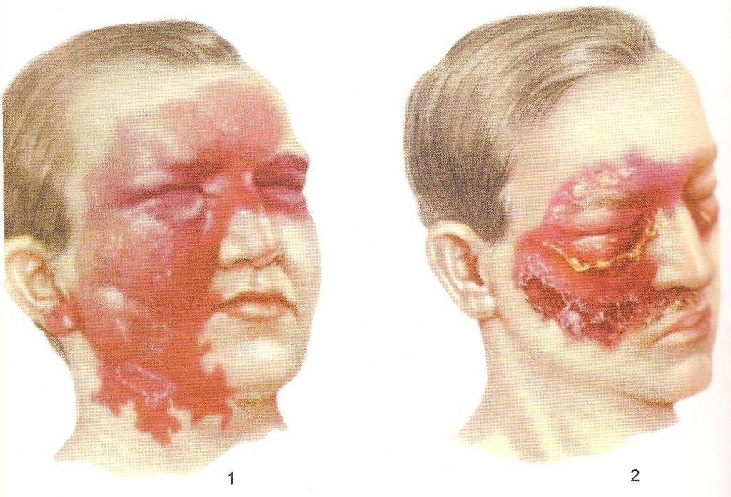 Рожистое воспаление лица