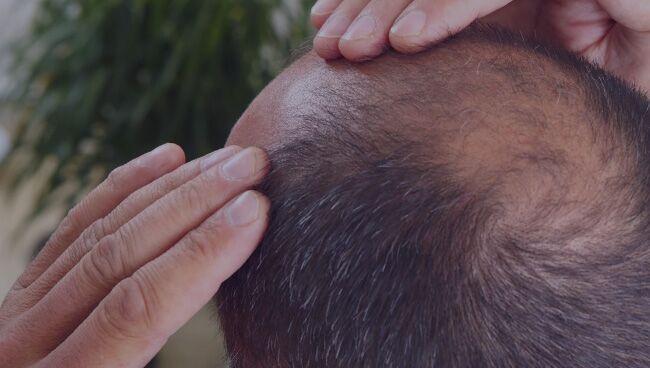 Правила проведения ритуалов от выпадения волос